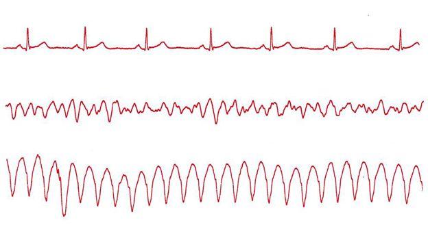 Fot. 1. Od góry: prawidłowy rytm zatokowy, migotanie komór, częstoskurcz komorowy, asystolia (całkowity zanik czynności mechanicznej i elektrycznej serca).